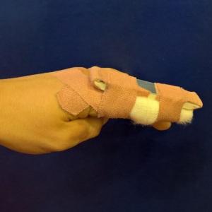 Splinted index finger